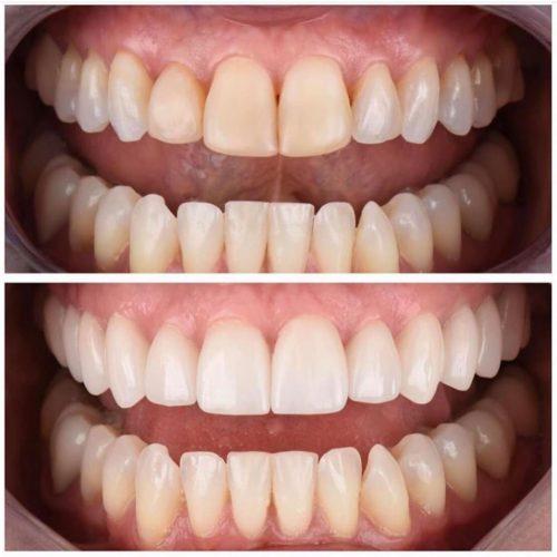 teeth-service